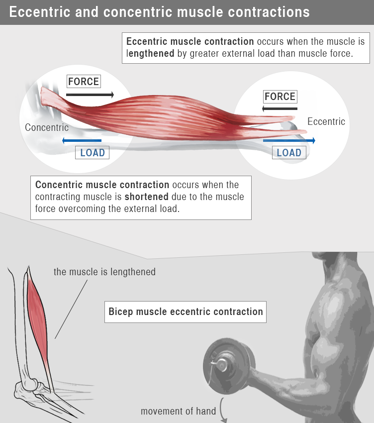 muscle pain after exerise